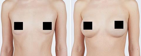 Natrelle Breast Implant