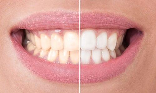 Will Teeth Whitening harm teeth