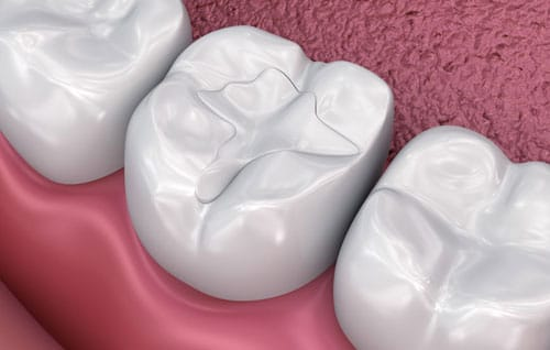 Dental Fillings – What are They and Do You Need Them?