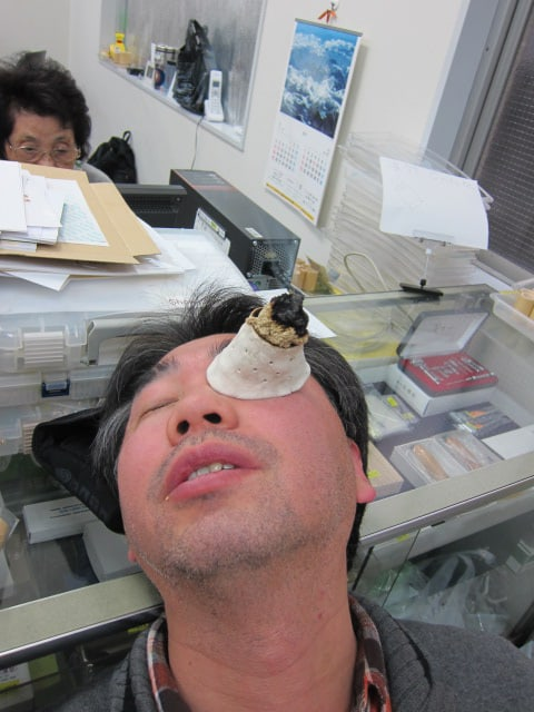 moxibustion-therapy-at-acupuncture-center-toronto-9