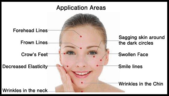 Acupuncture Center Toronto - Facial acupuncture points