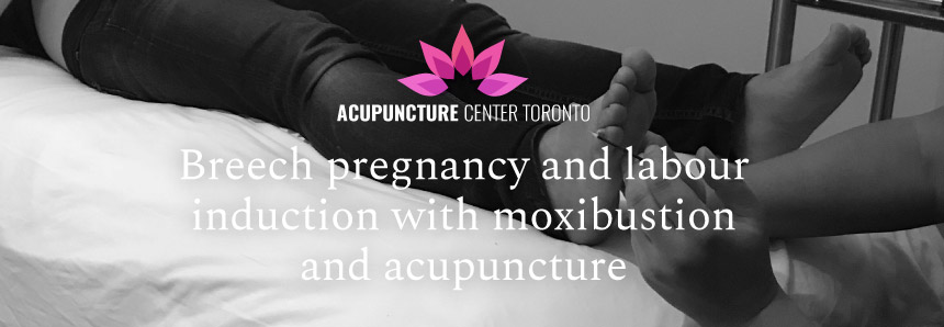 Breech pregnancy and labour induction with moxibustion and acupuncture