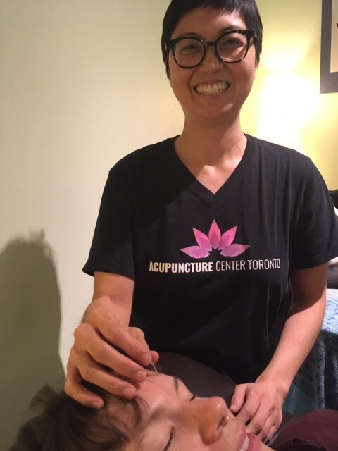 Carrie Toronto acupucturist needling Yin Tang for headach relief