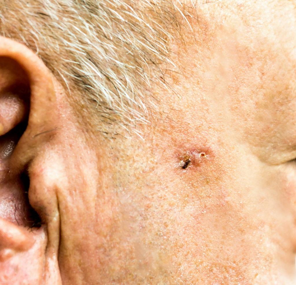 Non Melanoma Skin Cancer Dr Maksym Breslavetsdr Maksym Breslavets