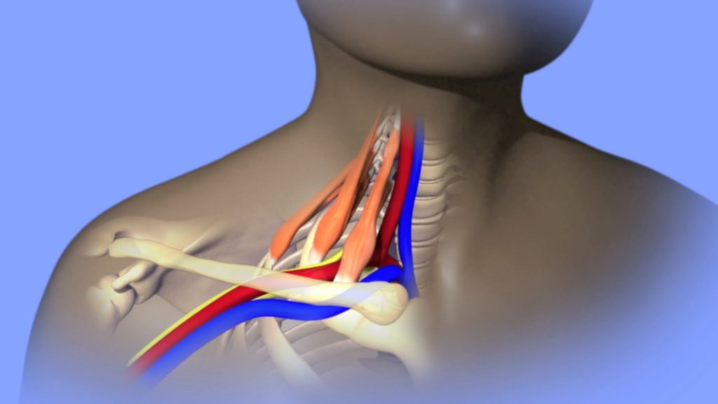 Thoracic Outlet Syndrome