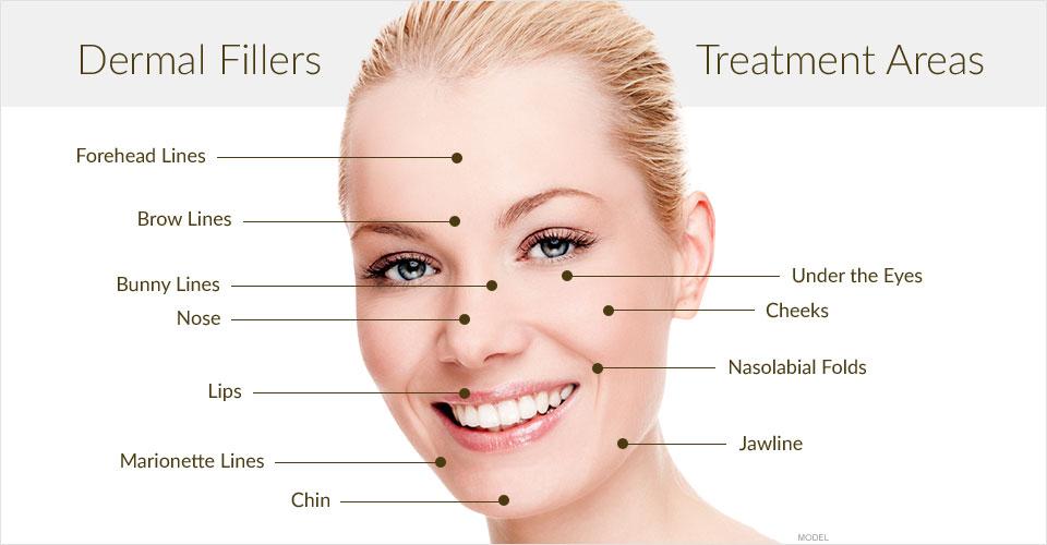 Dermal Filler Treatment Areas