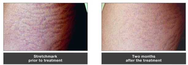 Stretch Mark Softening