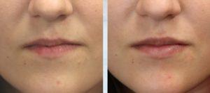 Botox Lip Flip