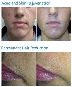 acne hair removal