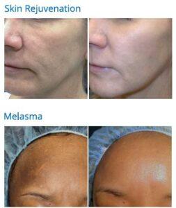 skin tightening melasma