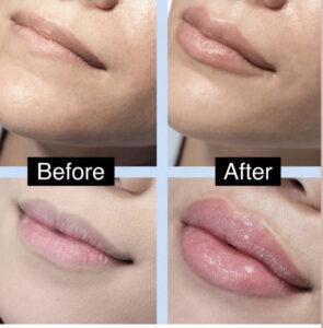 Versa Dermal Filler Lips