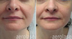 Skin Rejuvenation6 - Pair