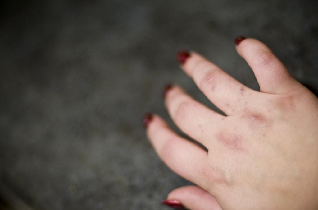 A hitchhikers guide to eczema