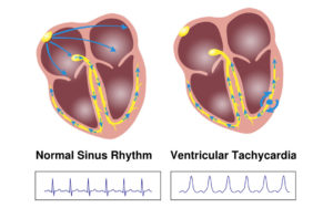 tachycardia-image2