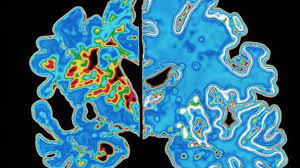 Can the gut microbiota slow the progression of Alzheimer's disease?