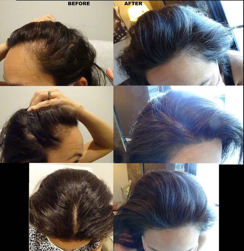 female hair restoration, PRP for hair loss