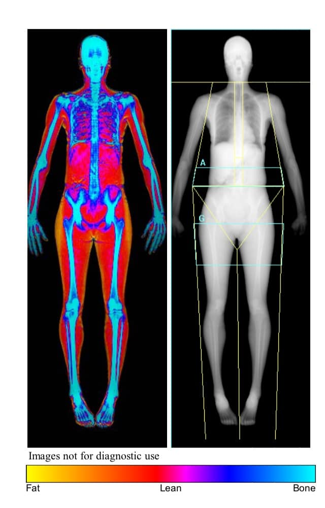 What Are You Made Of? This Body Scanner Will Show You