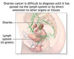 ovarian-cancer-diagnosis-strategies-treatments