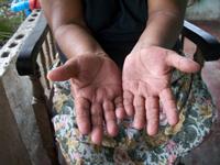 Midwives-Hands_Honduras