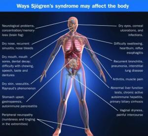 sjogrens affect body