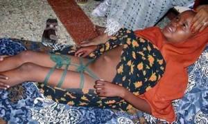 female-genital-mutilation