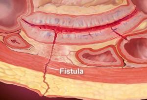 fistula-
