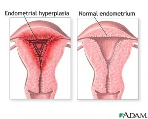side by side pictures of diseased uterus on left and healthy uterus on right displaying endometriosis damage