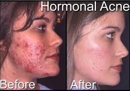 acne- hormonal