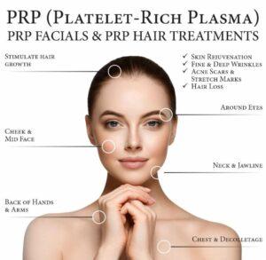PRP Platelet-Rich Plasma