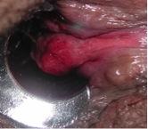 hemorroides internas