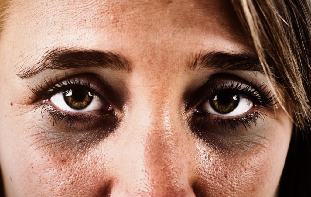 How to get rid of the curse of dark circles