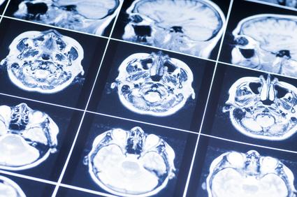 Understanding Closed-head Injuries