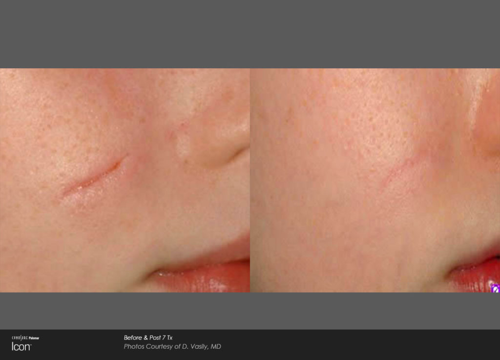 Scar-Removal-Before-and-After-Images-2