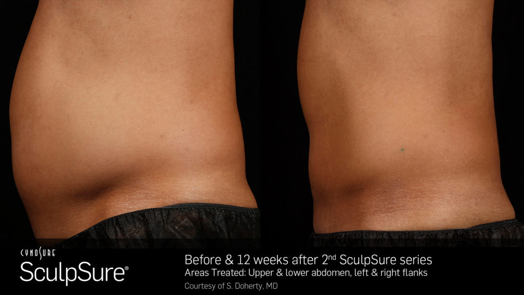 SculpSureBA_SidebySide_Male1