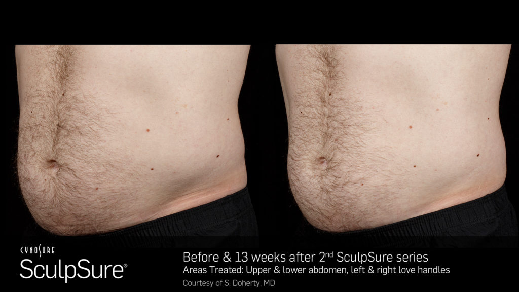 SculpSureBefore_After_SidebySide_Male6