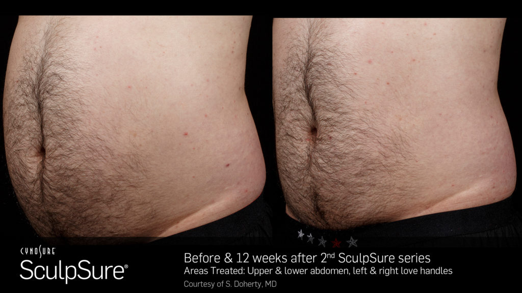 SculpSureBefore_After_SidebySide_Male7