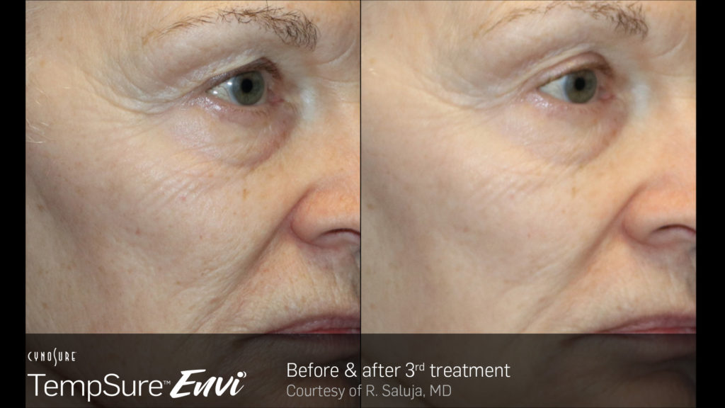 TempSure-Envi-Before-and-After-Image_8