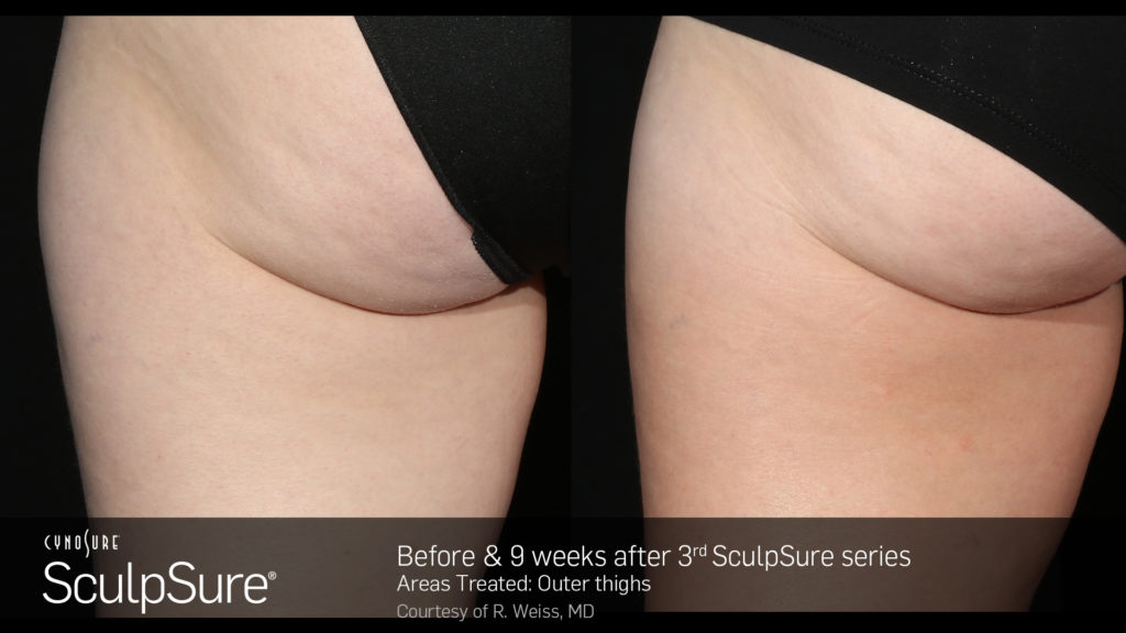 marketing_materials_BA_SculpSure_R.Weiss_OuterThigh_3tx_9weeks