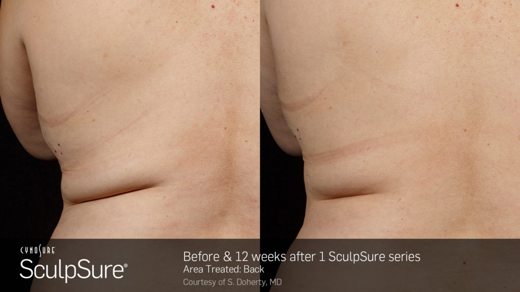 marketing_materials_BA_SculpSure_S.Doherty_Back-2_1tx_12weeks.2