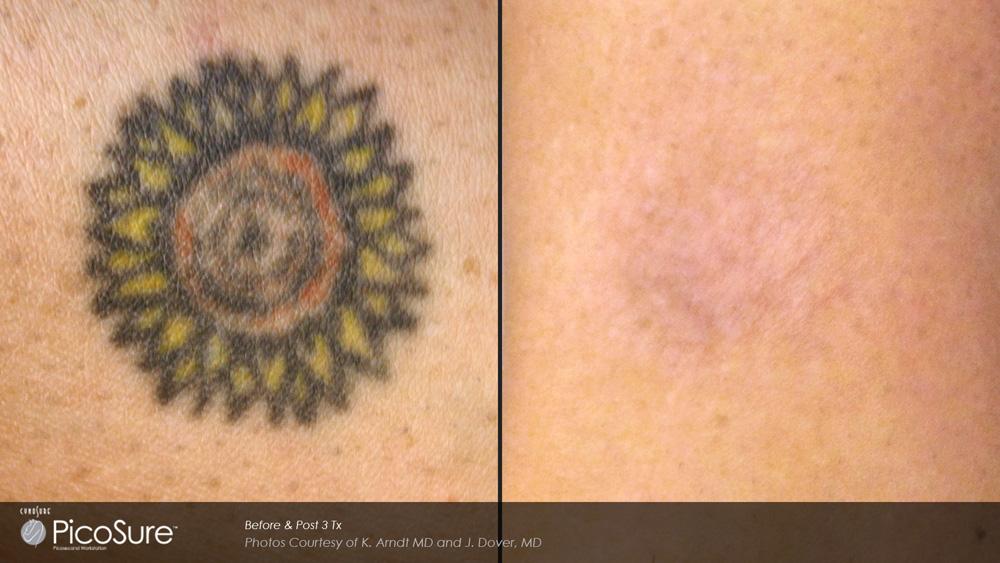 marketing_materials_ba-picosure-cynosure-post3tx-sun