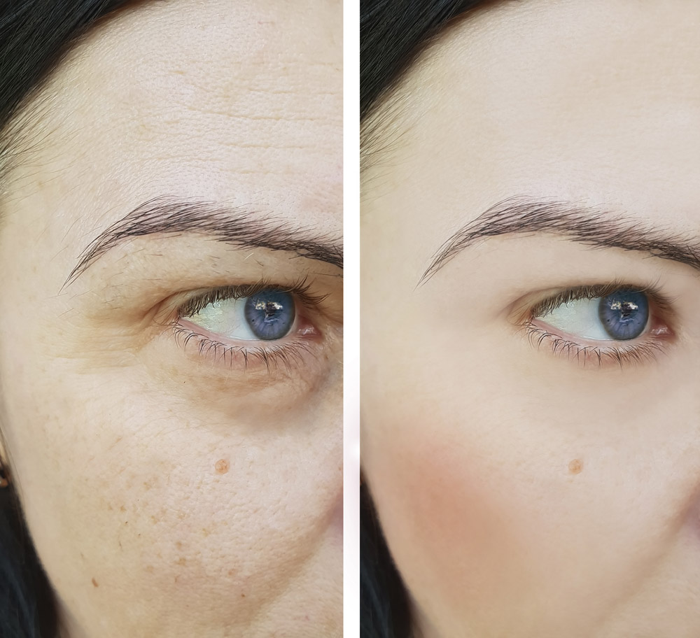woman face wrinkles before and after pigmentation