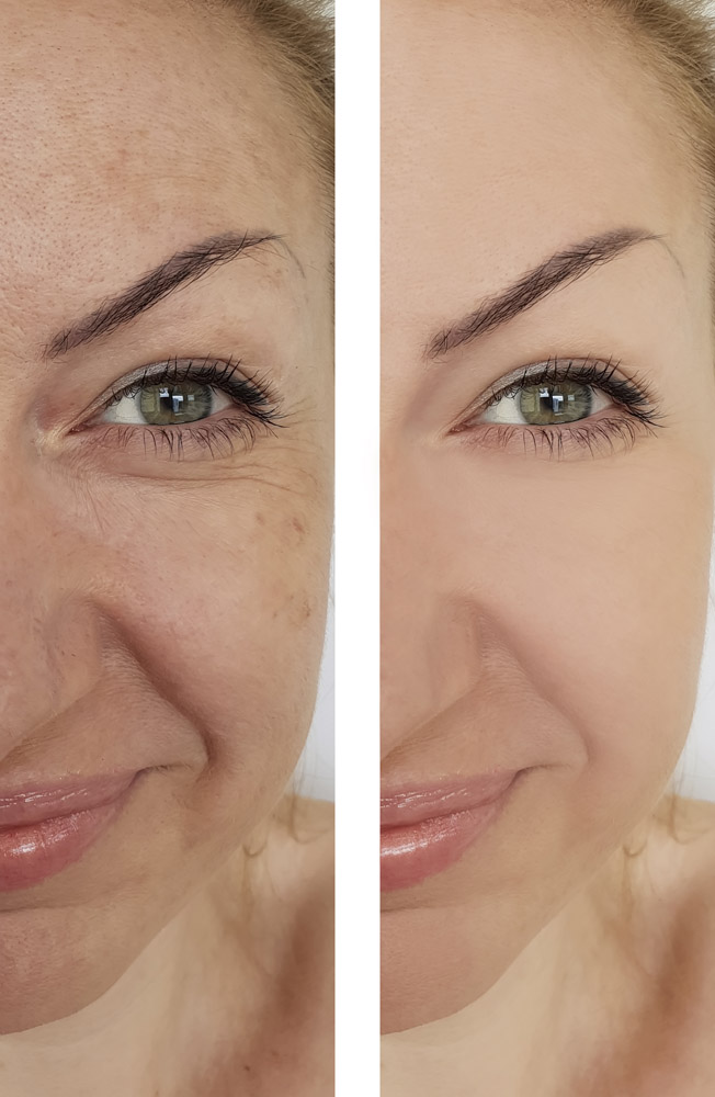face woman wrinkles before and after pigmentation