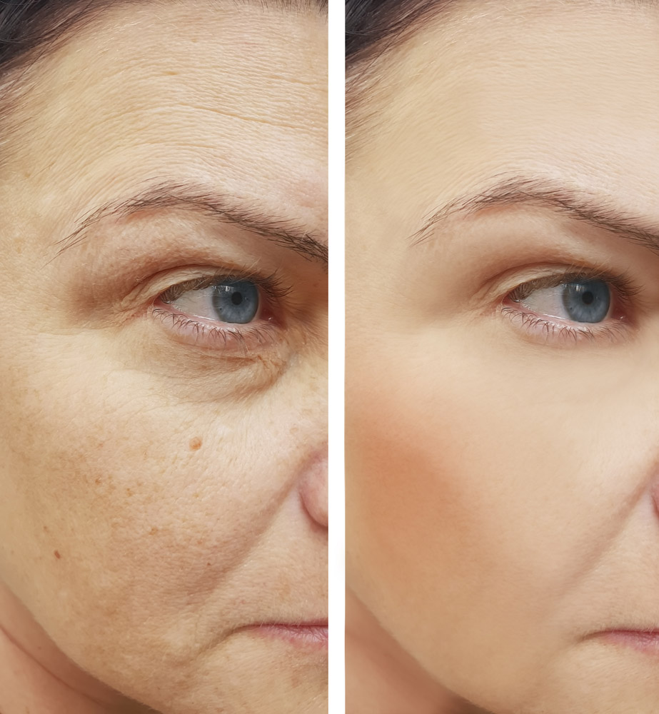 wrinkles face woman before and after procedures, pigmentation