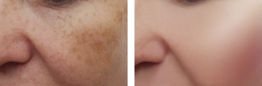 woman face wrinkles pigmentation before and after procedures