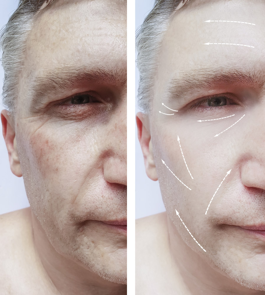 male face wrinkles before and after treatments, pigmentation