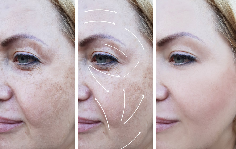 woman wrinkles correction before and after procedures, arrow, pigmentation