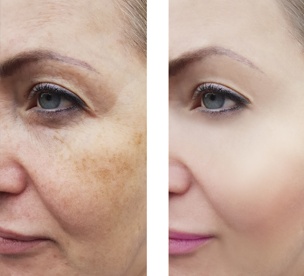 wrinkles woman face before and after pigmentation retouch