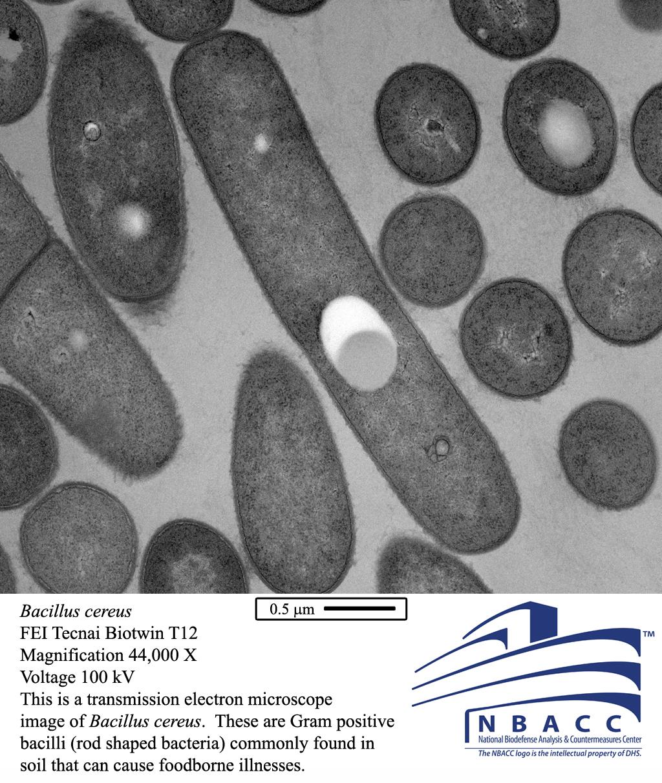 Microscopic view of Bacillus cereus