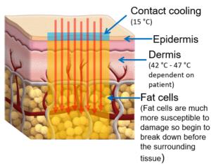 laser body contouring