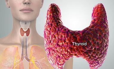 Am I Hypothyroid?
